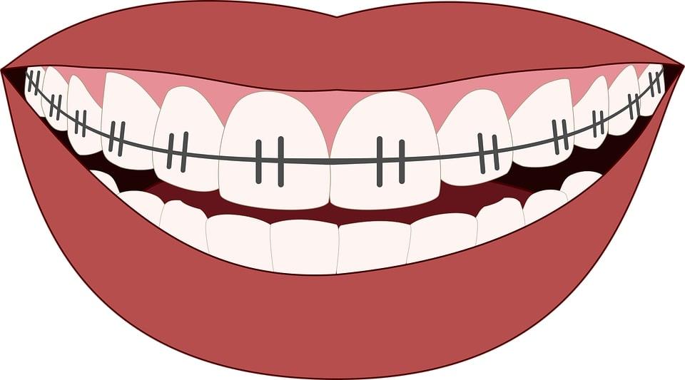 Orthodontie chez sos dentiste